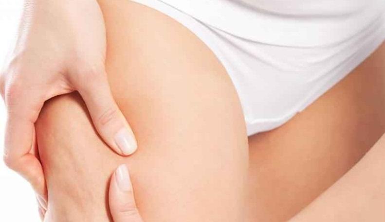 Colo eliminar la celulitis